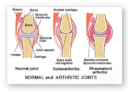 Dureri de spate renunta la picior si la genunchi